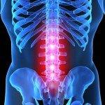 Глюкозамин хондроитин МСМ — революция в лечении суставов и позвоночника