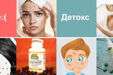 teen-acne-treatments