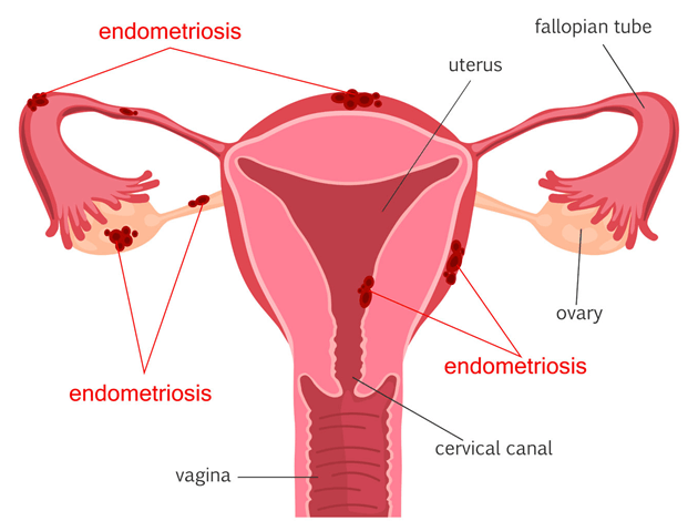 locations-endometriosis