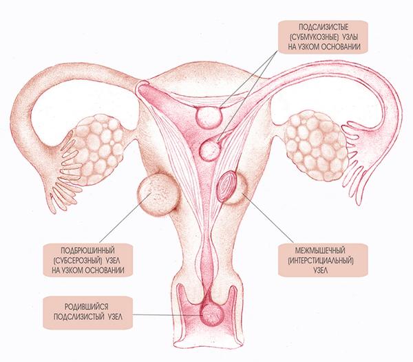 fibroids-types